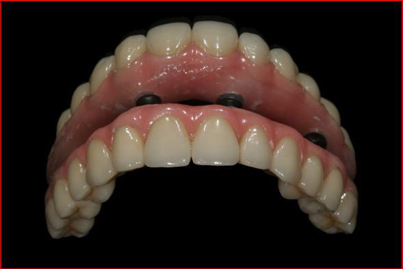 Bütün dişler için implant yapını